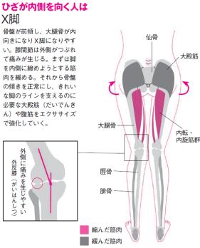 すでにひざに痛みがある人は整形外科に行き、レントゲンか磁気共鳴画像装置(MRI)で膝関節の様子をチェックしておきましょう。膝関節に問題がある場合は、