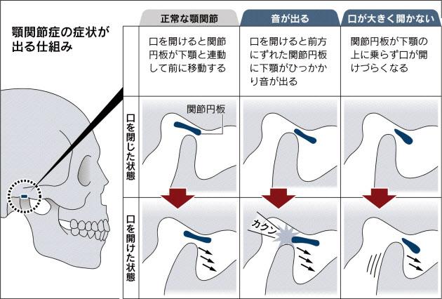あごが音がするようになってきた 治療方法 解決方 …