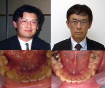 歯周病治療前(左)と治療後の西田氏。体重は92キロから74キロに