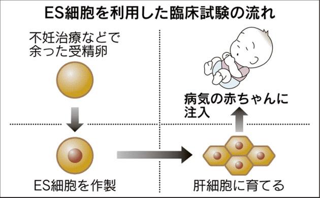 ES細胞で国内初の治験申請 肝臓病の赤ちゃんに